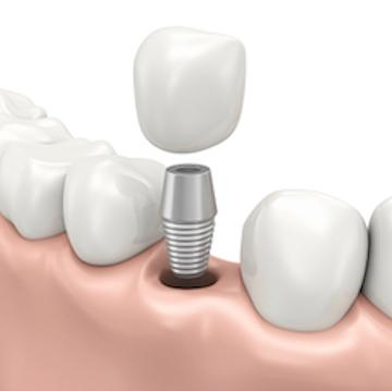 Diagram of dental implant going into gums at our 73013 dentist office