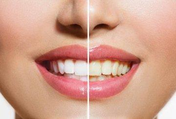 Before & After results from teeth whitening in Edmond OK | Cosmetic Dentist Edmond OK