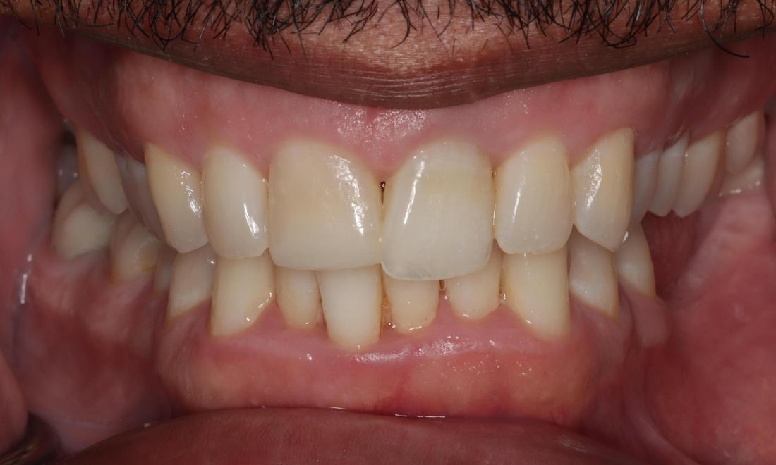 Close up of patients smile after cosmetic dentistry in Edmond OK