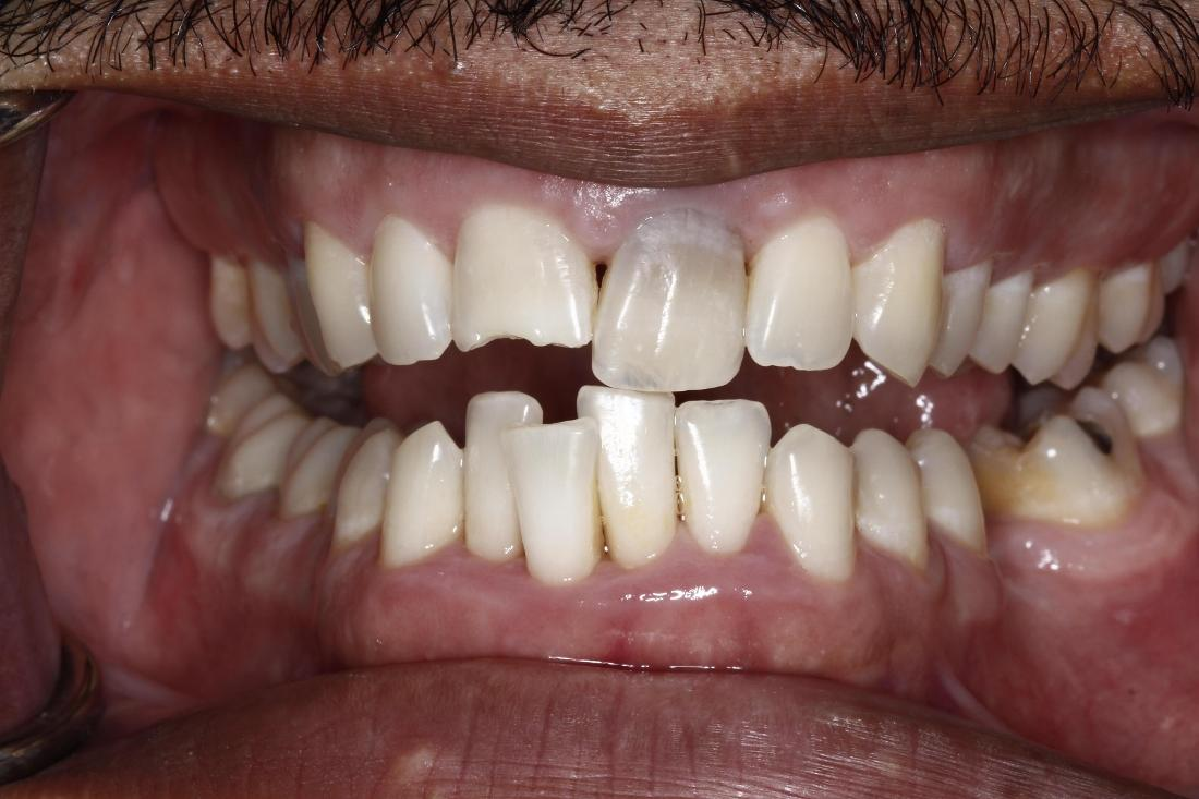 Close up of patient with chipped and misaligned teeth at 73013 dentist office