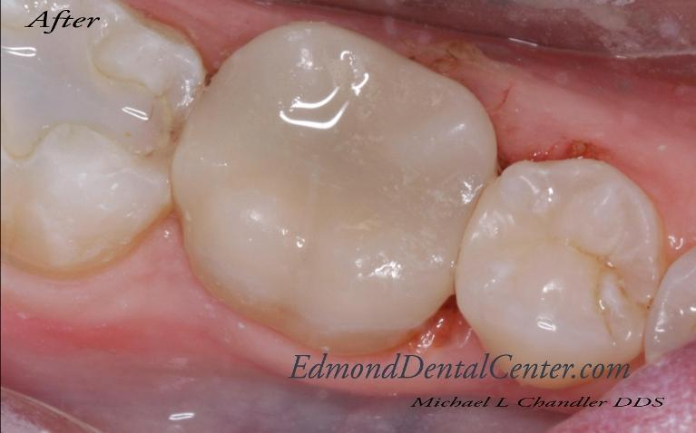 Biomimetic-Restorations-After-Image