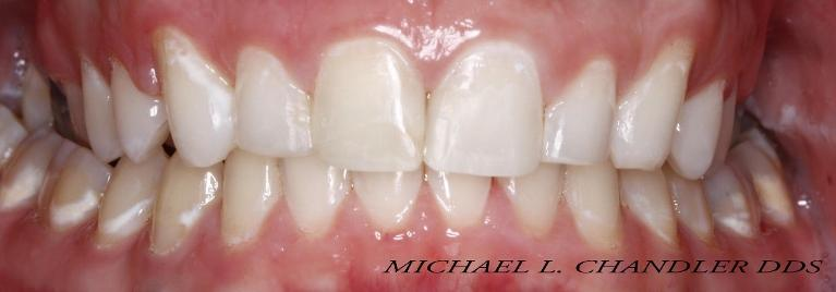 Dental-Bonding-and-Whitening-After-Image