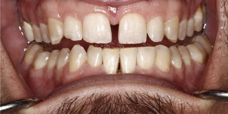 Periodontal-Services-After-Image