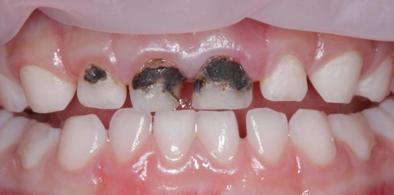 Pediatric-Dentistry-Before-Image