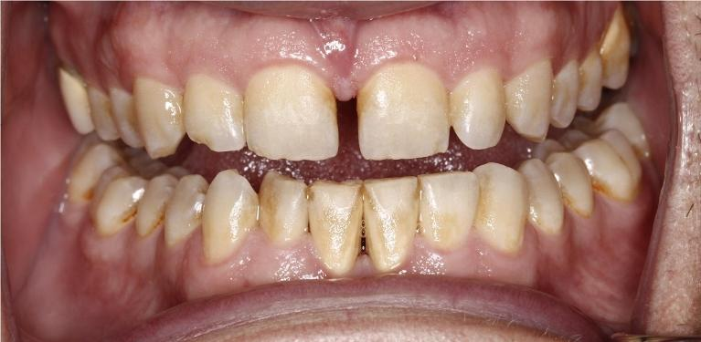 Periodontal-Services-Before-Image